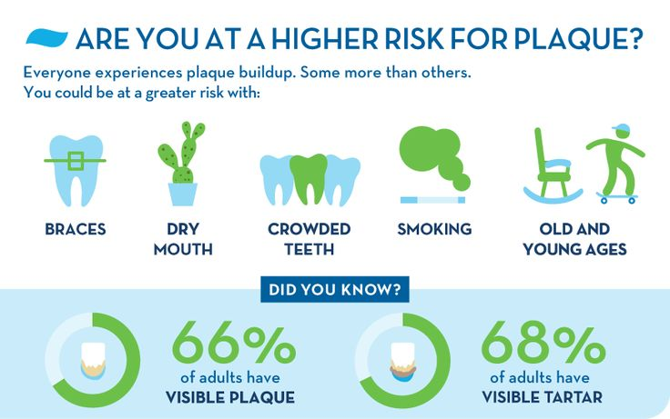 Dental plaque and tartar causes prevention and removal