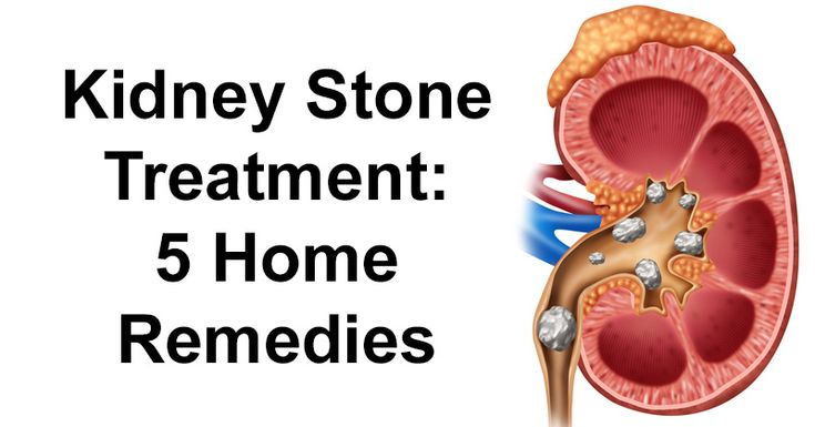 how to pass a kidney stone quickly at home