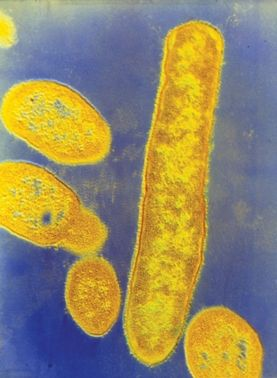 Bacteroides fragilis Credit: CNRI/SCIENCE SOURCE Gut Bacteria May Play a Role in Autism