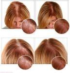 Горчица Золотой колос Горчичный порошок - «Горчичная маска с дрожжами - лучшее средство для роста волос! Мой опыт» | Отзывы покупателей