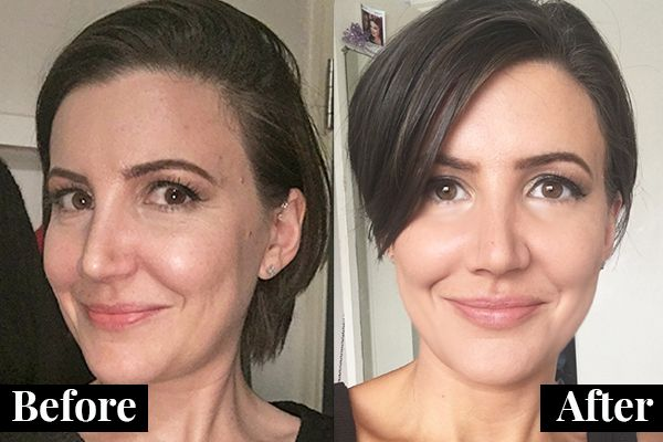 This Is What Happens In A Liquid Facelift | Liquid facelift