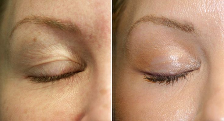 This patient's concern was her eyes.  She felt that the lines and winkles were making her look older than she was.  Co2 resurfacing is done with the Dr using our fractional laser.  The results for the patient were incredible.