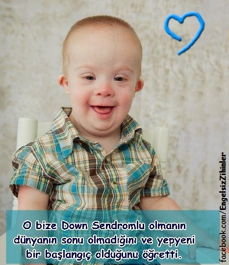 #down sendromu #down syndrome