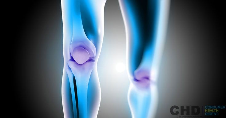 How to Get Rid of #Hypermobile Joint Pain?