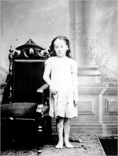 As an eight-year-old, Mary Ellen Wilson was severely abused by her foster parents, Francis and Mary Connolly. Her case of child abuse led to the creation of the New York Society for the Prevention of Cruelty to Children. Image dated 1874.: Foster Parents, Mary Ellen, Girl, Abuse Led, Cases, Child Abuse, Children, Mary Connolly, Animal