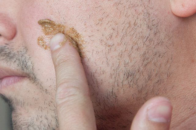 Can You Remove Facial Hair With Salt?