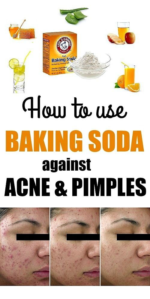 Treatment for severe acne with baking soda - Beauty Top Ideas