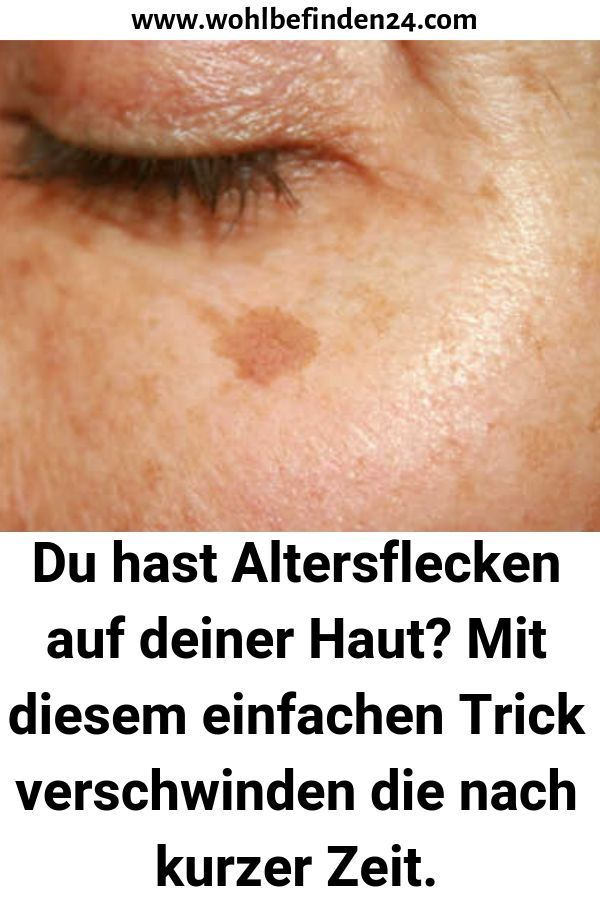 Do you have age spots on your skin? With this simple trick, the ... - Daniela Müller - PickPin-Du hast Altersflecken auf deiner Haut? Mit diesem einfachen Trick verschwinden d… – Daniela Müller – PickPin  Do you have age spots on your skin? With this simple trick d … – Daniela Müller  -#age #Daniela #Müller #PickPin #simple #Skin #Spots #trick