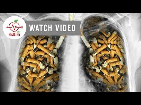 8 Surprising Signs Of Lung Cancer You Should Know - Cancer Treatment - WATCH VIDEO HERE -> http://bestcancer.solutions/8-surprising-signs-of-lung-cancer-you-should-know-cancer-treatment    *** symptoms of lung cancer ***   8 Surprising Signs Of Lung Cancer You Should Know Channel : Keyword : lung cancer treatment lung cancer patient stories lung cancer cough lung cancer stage 4 lung cancer from smoking lung cancer story lung cancer survivor lung cancer lung cancer symptoms l