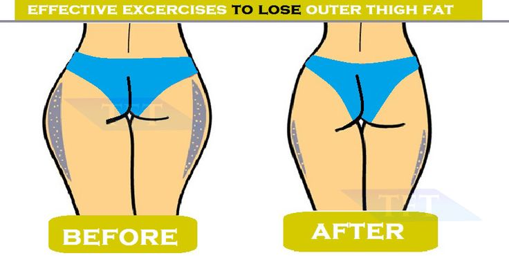 Are you worry about outer thigh Fat? but it can be far more difficult if you're trying to lose fat from your inner or outer thighs. The problem is more frustrating for women. The good thing is that you can perform some outer thigh exercises and tone up your thighs to some extent. It is