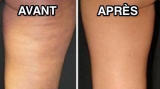 remède efficace anti-cellulite avant après