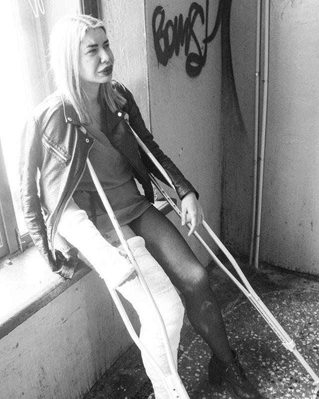 Hard times crutching  #legcast #plastercast #llc #longlegcast #fetishmodel #fetishes #bdsm #mouth #bondage #castfetish #feet #foot #feetporn #fracture #brokenbones #fetish #medicalfetish #gag #ballgag #ducttapebondage #slc #clc #lac #sac #brace #neckbrace #armcast #toes #toeplate #crutches