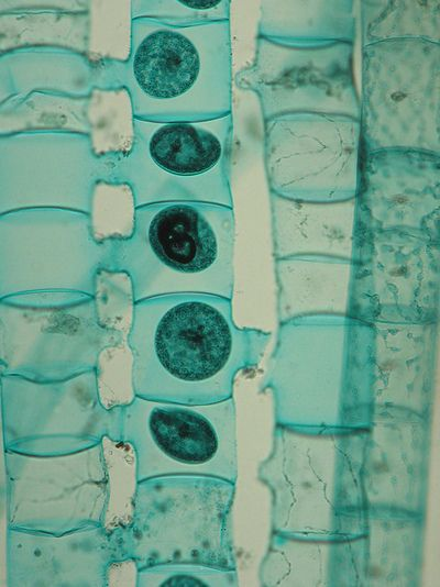 Spirogyra , a free-floating filamentous form of green algae at the end of the conjugation process. Brightfield microscopy.