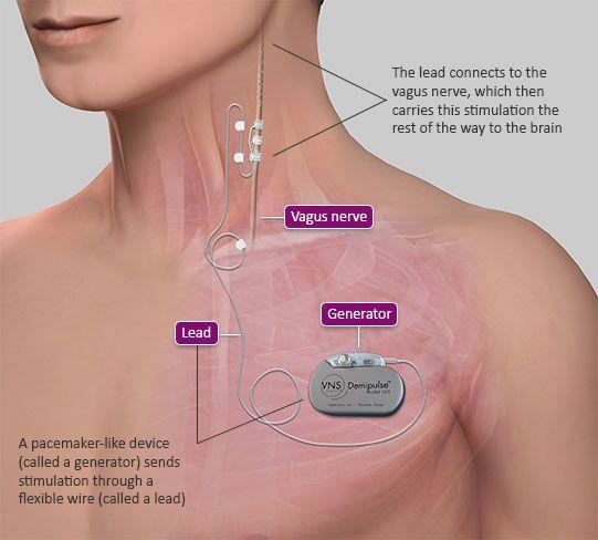 vagal nerve stimulator /made by Cyberonics