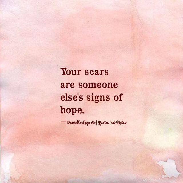 Your scars are someone else's signs of hope. ―Danielle Laporte via (http://ift.tt/227nOPG)