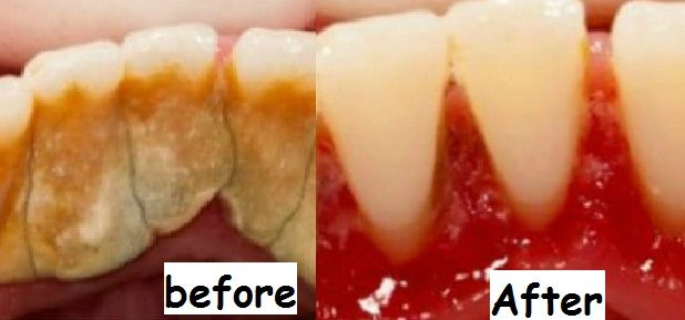 How To Remove Tartar Buildup Favorite In 2020
