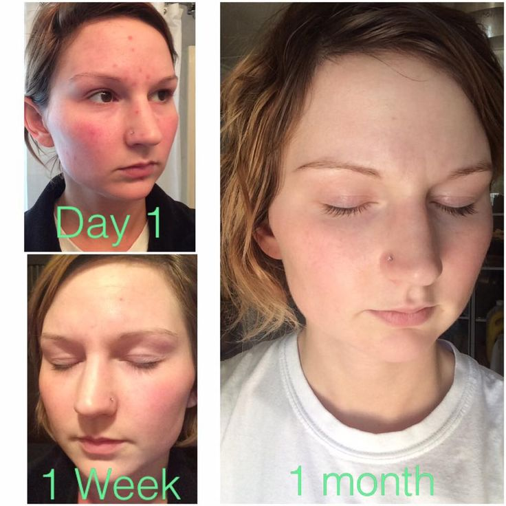 """I've finally worked up the courage to share my own personal Rodan + Fields results! These products are the real deal. I've struggled with acne and every product I've used in the past never worked. I am so thankful Sue introduced me to these one of a kind products that actually work!! I couldn't be happier!! I've used the Unblemish & Soothe regimens"" ~ R+F Consultant Melissa K. indra.arman@gmail.com"
