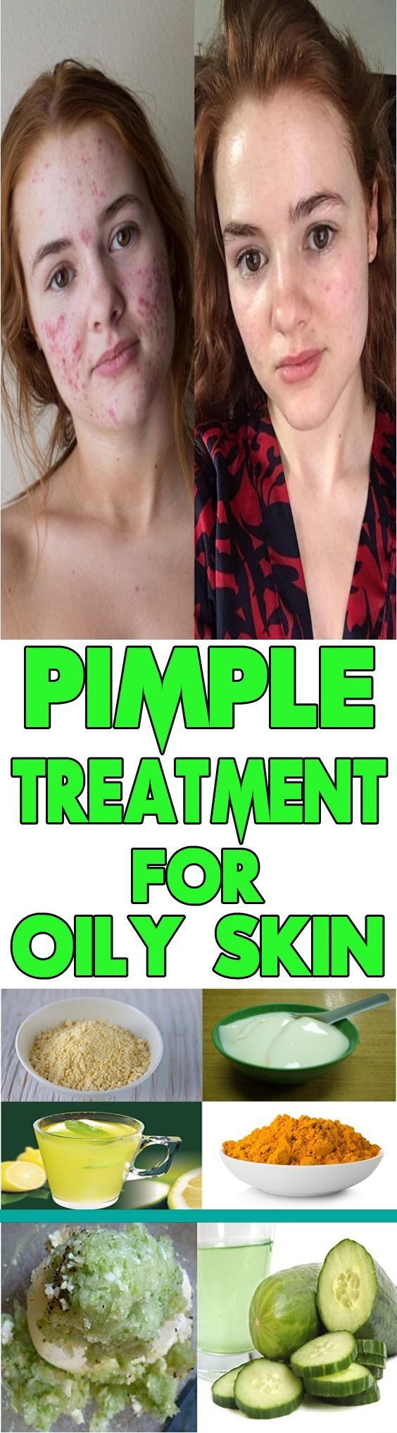 how to clear pimple marks naturally