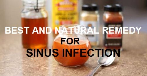Best Remedy For Sinus Infection