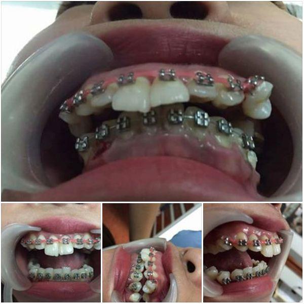 dental problems of DIY braces, Dental Braces Gone Wrong, DIY Braces, PDA, Fake Dentist, side effects of DIY braces, severe orthodontic problems, dIY dental braces, miserable teeth alignment, malpractic dental treatment
