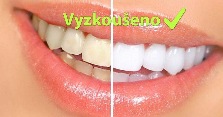 Domácí bělení zubů – vyzkoušeno!