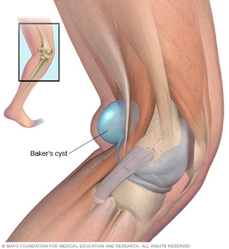 Illustration showing Baker's cyst