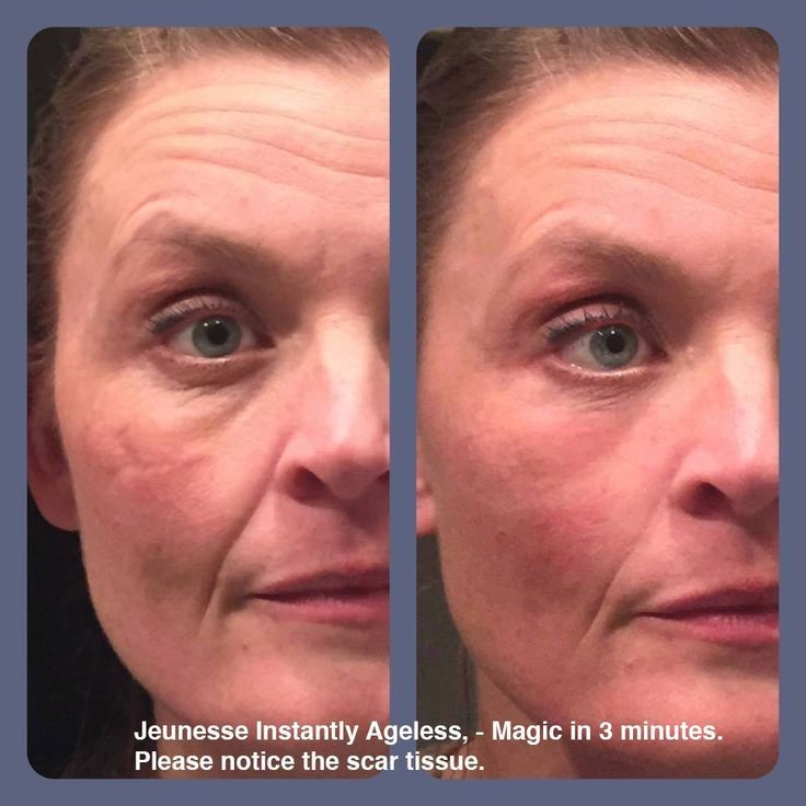 Look at the amazing results on this lady with scar tissue!  More amazing photos on www.facebook.com/instanteyemiracle  Please like our page! www.vivre121.jeunesseglobal.com