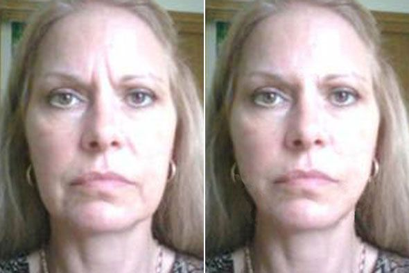 Harnessing The Chinese Nodal Facelift: Restore And Trim Your Face Via Face Workout Techniques