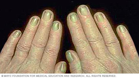 With yellow nail syndrome, nails thicken and new growth slows. This results in a yellowish discoloration of the nails.  Nails affected by yellow nail syndrome might lack a cuticle and detach from the nail bed in places. Yellow nail syndrome is often a sign of respiratory disease, such as chronic bronchitis. Yellow nail syndrome can also be related to swelling of the hands (lymphedema).
