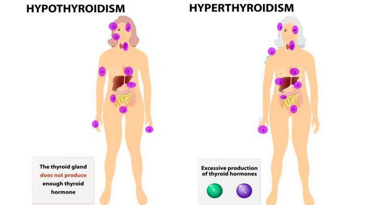 thyroid-issues