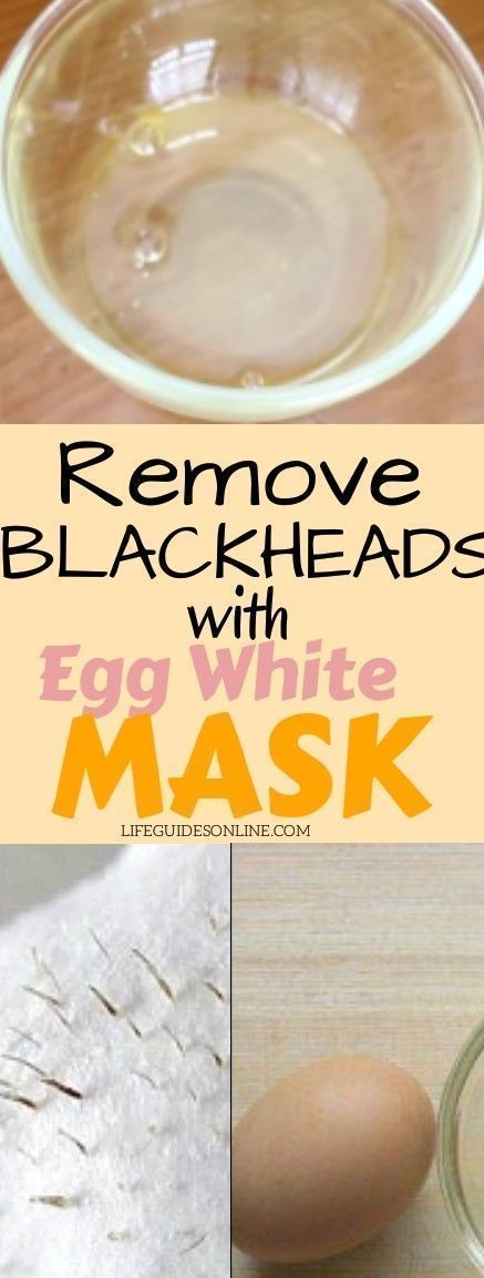 Remove Blackheads with egg white Face Mask #Homema…