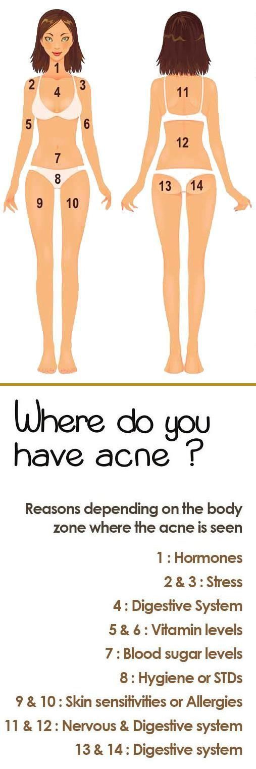 Body Acne Map And What Is It Telling You