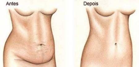 """""""Seca barriga"""" perca 4kg em uma semana!!"""