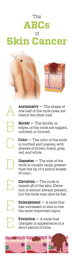 ABCs of Skin Cancer