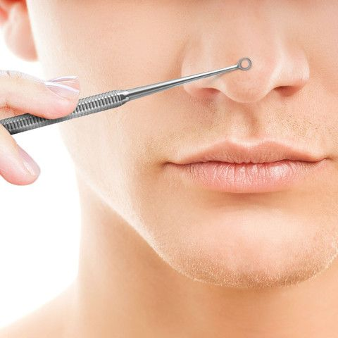 Tips For Using A Blackhead And Blemish Extractor Tools Properly