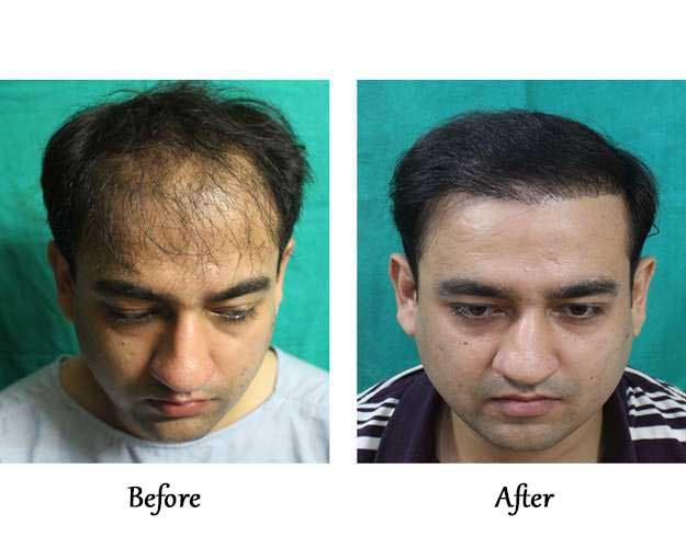 Hair Transplant gone wrong corrected for 30 year old pilot with FUT | Hair Transplant Success Stories and Experience