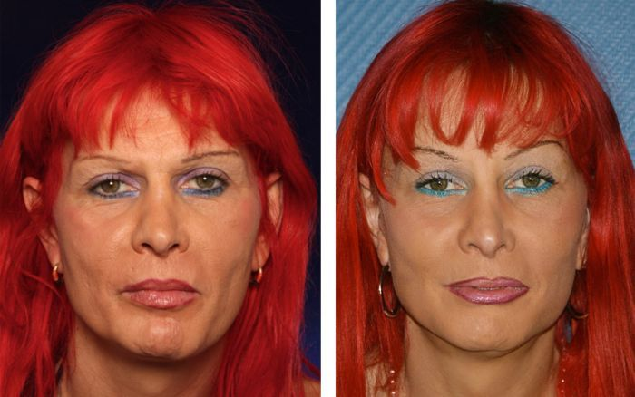 How A Little Effort Performing Face Rubbing Exercises Can Generate A Huge Boost To Organic Facelifts