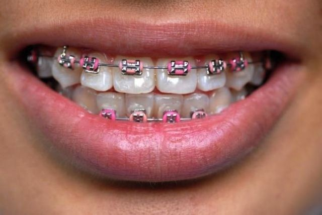 Alternating shades of PINK! Great shade for Valentine's Day and Breast Cancer Awareness! #lovebraces #pinkbraces #braces