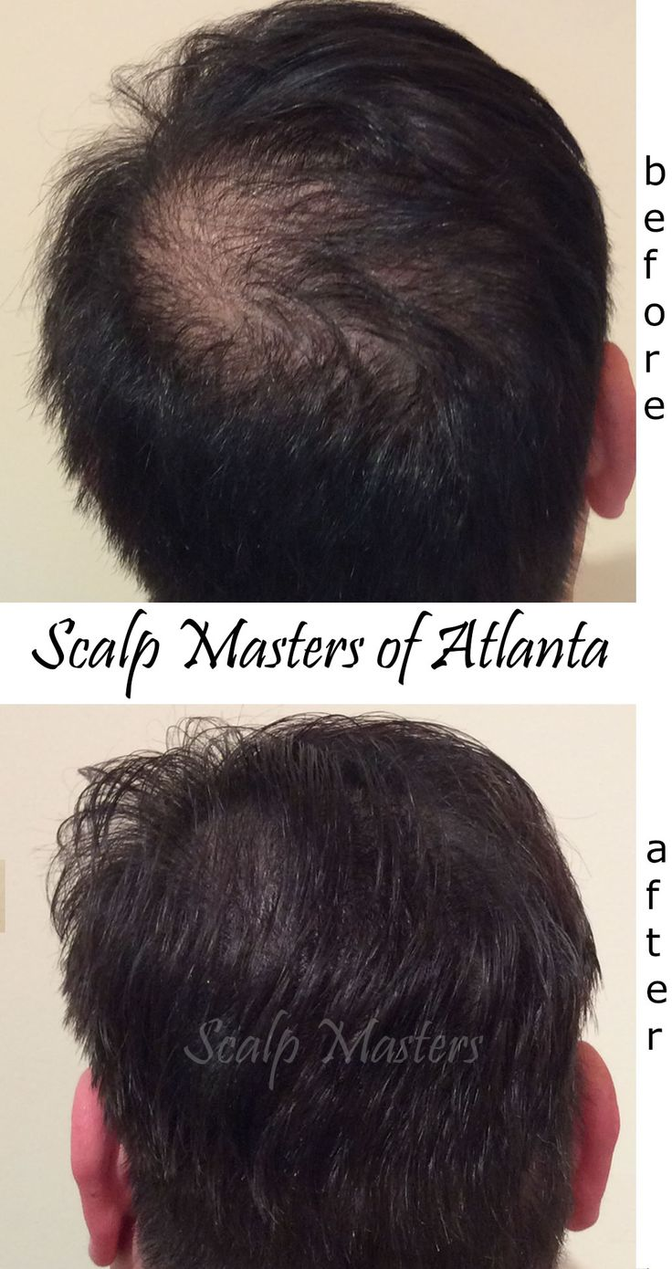 We used a special scalp micropigmentation technique for this client to address hair thinning and crown balding.