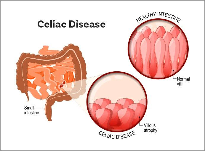A diagram that illustrates how celiac disease affects normal villi in the  small intestine. | Celiac disease foundation, Celiac disease, What is celiacPinterest
