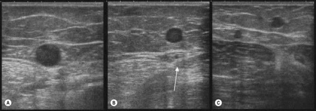 Ultrasound image of great saphenous vein in the fascia layer