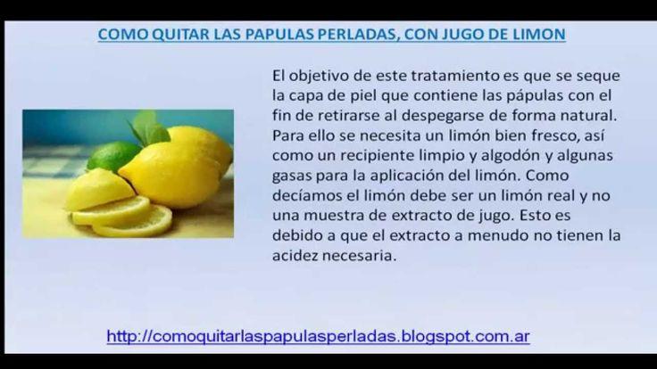 Papulas Perladas-Como quitar las papulas perladas con jugo de limon