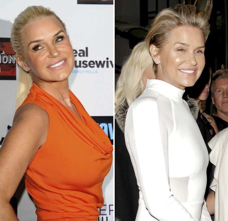 Celebs Who've Removed Their Breast Implants - Health