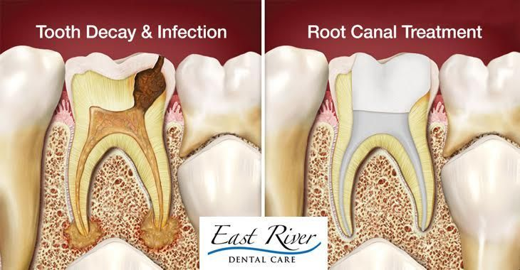 Root Canal Newmarket - Best Dentist In Newmarket | Newmarket Dentist | East River Dental Care.