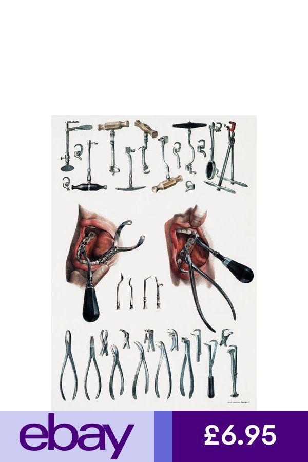 ANTIQUE MEDICAL DENTAL EXAMPLES OF TOOTH KEYS /&  EXTRACTION TOOLS  A3 RE PRINT
