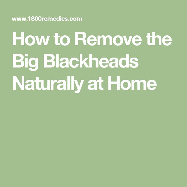 How to Remove the Big Blackheads Naturally at Home