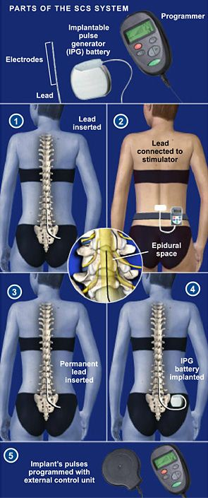 Spinal Cord Stimulator Implant - Spinal cord stimulation (also called SCS) uses electrical impulses to relieve chronic pain of the back, arms and legs. It is believed that electrical pulses prevent pain signals from being received by the brain. SCS candidates include people who suffer from neuropathic pain and for whom conservative treatments have failed. #spine #health http://www.southeasternspine.com/procedures-treatments/spinal-cord-stimulator-implant/
