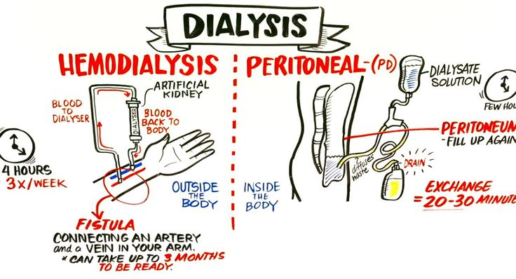 Failing Kidneys and Different Types of Dialysis