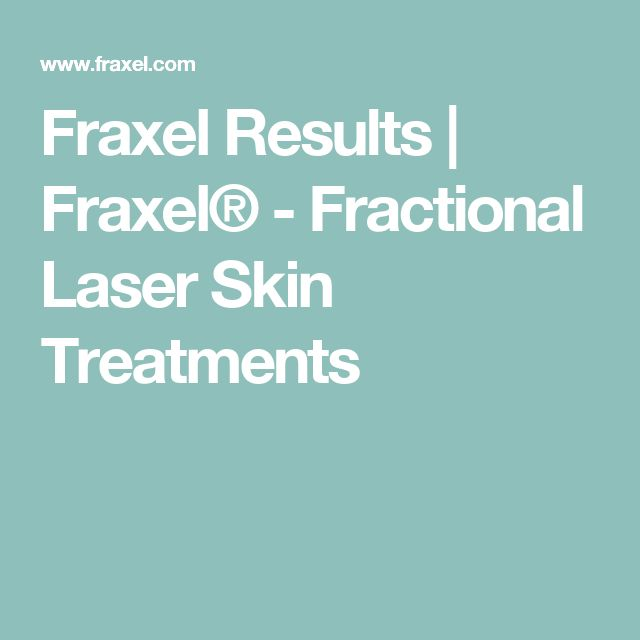 Fraxel Results | Fraxel® - Fractional Laser Skin Treatments