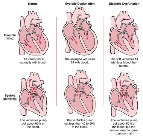 Heart Failure : Symptom, Pathophysiology, Diagnosis And Treatment - Health, Medicine and Anatomy Reference Pictures